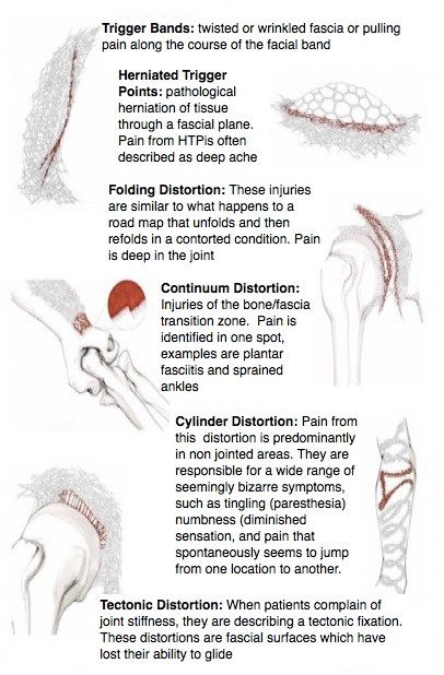fascial distortions